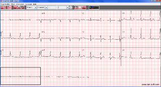 ECG Viwer - signal-view