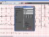 ECG Viwer - printing
